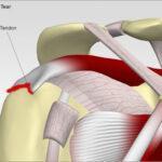 http://www.shoulder-info.com/patients/shoulder/rotator_cuff_tear.htm